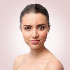 Woman face before and after acne treatment procedure. Skin care concept.