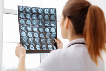 Careful excellent doctor having a better look at brain scans