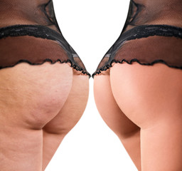 Female buttocks before and after cellulite.