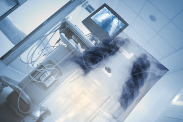 X-ray unit with chest image in hospital