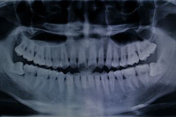 teeth x-ray for pattern and design