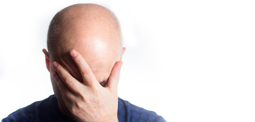 Portrait of a stressed Sad bald man on white background, covering eyes with hands, hair loss baldness, headache, Shame, drowsiness, sleep Wall mural