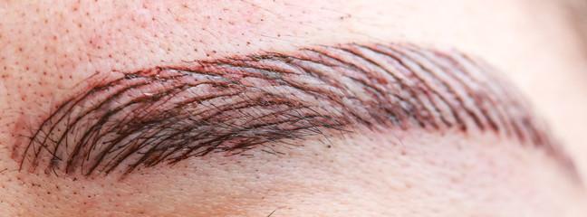 Permanent eyebrow tattoo