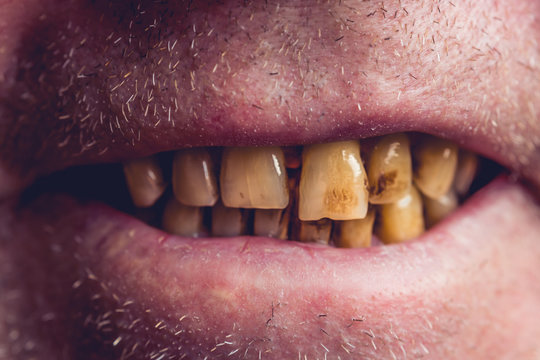 Yellow and curved teeth of a smoker covered with dental stone