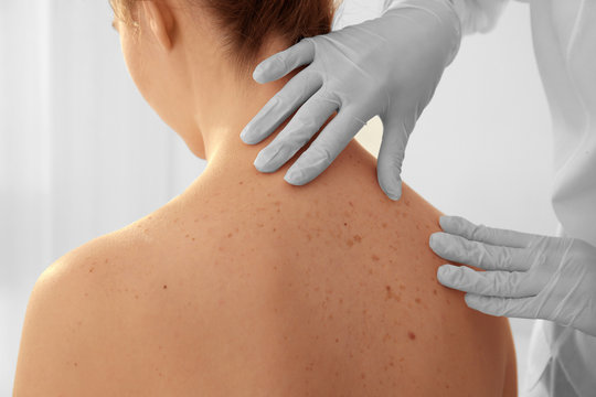 Dermatologist examining patient in clinic, closeup