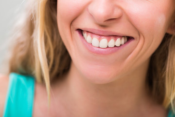 Photo of woman with beautiful white teeth.