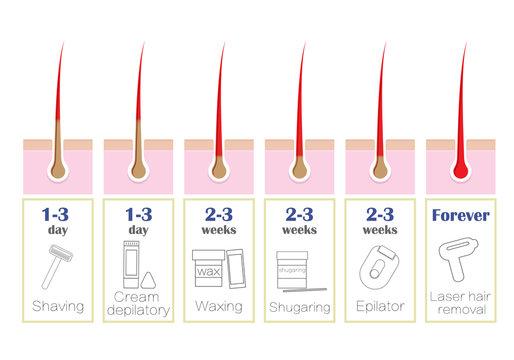 Comparison of the popular methods of hair removal: laser, epilator, waxing, shaving, shugaring,