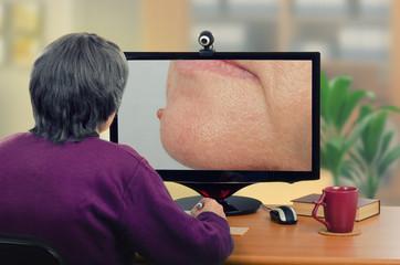Telemedicine dermatologist looking at mole on chin