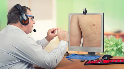 Telemedicine dermatologist examines sebaceous cyst on monitor