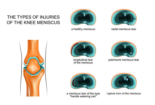 types of meniscus tear