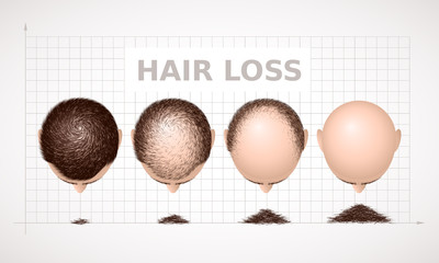 Hair loss. Graph of four stages of alopecia