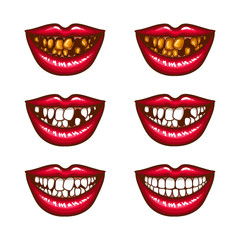 A collection of pop art icons of red female lips - smiling, with missing teeth, with spoiled teeth. Badges, stickers, design elements, prints for T-shirts