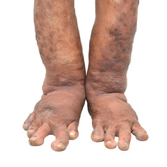 Foot disorders on white background