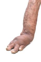 Foot disorders from birth, like filariasis. bone diseases