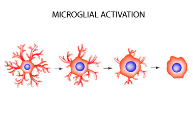 Activation of microglia. Neuron. Nerve cell. Infographics. Vector illustration on isolated background.