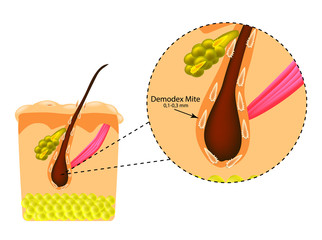 The structure of the hair. Sebaceous gland. Introduction of demodex mite. Demodecosis. Infographics. Vector illustration on isolated background