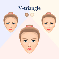 Correction for the V-triangular face