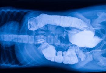 X-ray picture of the intestine with foreign bodies