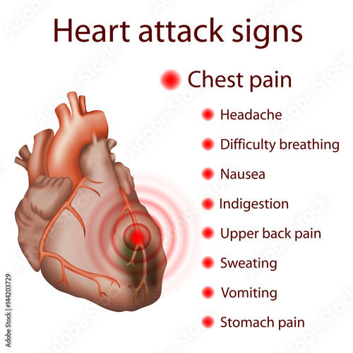 Heart Attack Signs Myocardial Infarction Damaged Heart Muscle