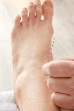 Therapy of female leg with pricking acupuncture needle