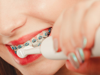 Woman smiling cleaning teeth with braces