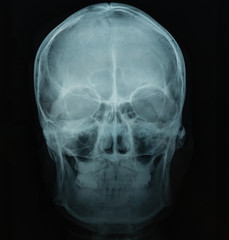 X Ray file of human skull in black background