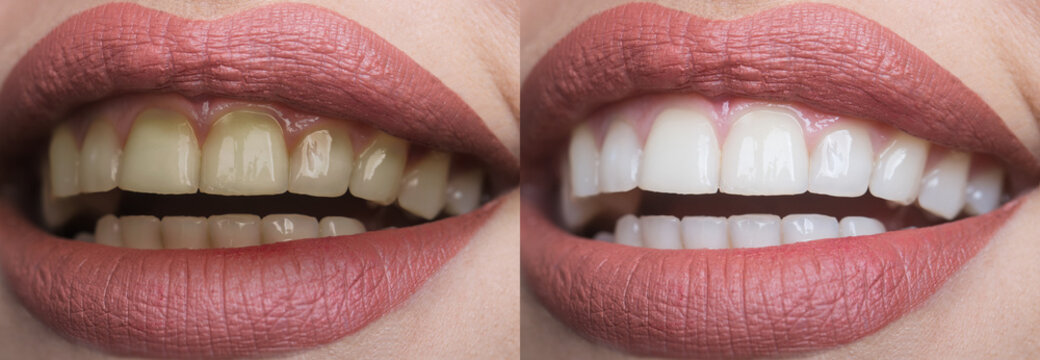 Teeth whitening at the dentist. Stomatology and dental clinic concept. Teeth before and after. White tooth smile. White and yellow teeth, plaque cleaning on teeth. Whitening toothpaste, healthy teeth