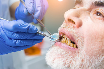 Dentist examining patient, close up. Elderly male with bad teeth. Tobacco use influences dental health.