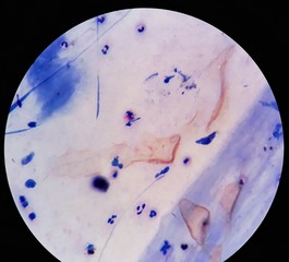 Smear of Acid-Fast bacilli (AFB) stained from sputum specimen with positive Mycobacterium tuberculosis (MTB), under 100X light microscope.