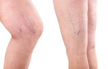leg. legs with varicose spider veins