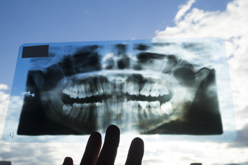 рентгеновский снимок человеческих зубов на фоне синего неба