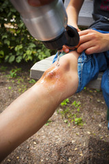 Water being poured on schoolboy's wounded knee at playground