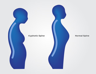 Kyphotic spine vector