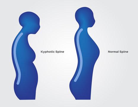 Kyphotic spine vector