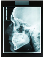 Profile xray of man jaw for dentist