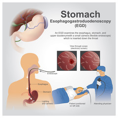 EGD Stomach. Vector graphic.