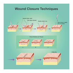 Wound closure techniques.