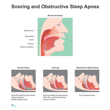 Snoring and obstructive Sleep Apne. Vector graphic.