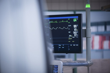 Anaesthesia monitor in catheter lab