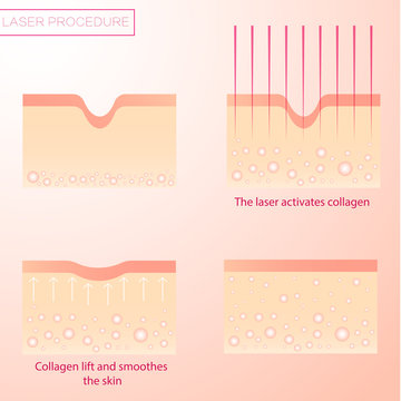 Procedure of laser rejuvenation. Lifting and resurfacing of the skin. Alignment of wrinkles.