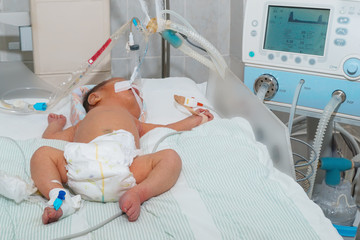 Newborn baby with hyperbilirubinemia on breathing machine or ventilator with pulse oximeter sensor and peripheral intravenous catheter at children's hospital