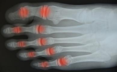 Close up foot  x-ray