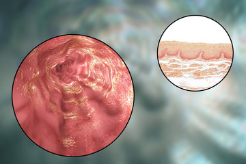 Human esophagous, 3D illustration and light micrograph of esophageal non-keratinized stratified squamous epithelium