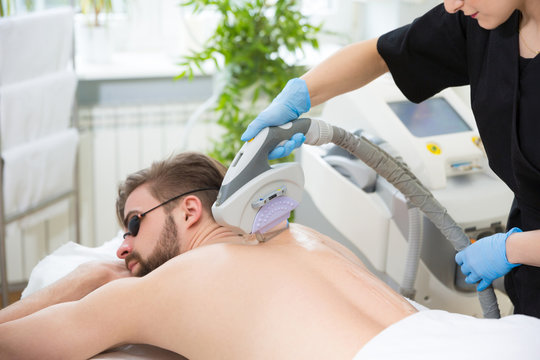 IPL therapy at men's back
