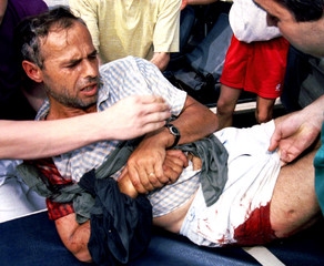 A man injured by pieces of shrapnel from a mortar shell exploding in the old part of Sarajevo is bei..