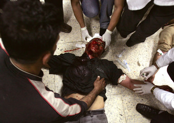 A wounded Palestinian is treated in hospital in Ramallah