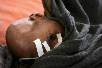 A malnourished Somali boy rests at a therapeutic feeding centre in Wajid