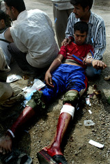 AN INJURED IRAQI BOY RECEIVES MEDICAL ATTENTIONAFTER STEPPING ON ANEXPLOSIVE DEVICE IN TAJI.