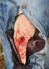 An Israeli activist displays a wound caused by a rubber-coated bullet during a protest in the West Bank