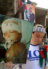 A PALESTINIAN GIRL DISPLAYS A PICTURE OF A BABY WOUNDED IN THE CONFLICTBETWEEN ISRAELIS AND ...